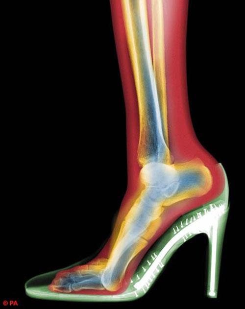 Среди последних изображений -  женская нога на шпильке…
