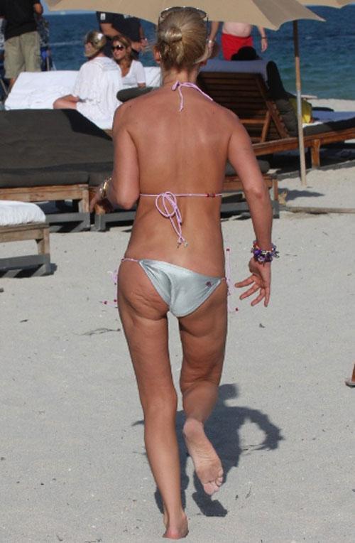 Фото жирная задница с целлюлитом 17 фотография