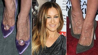 Топ-10 самых некрасивых звездных ног - Фото - TOPNews.