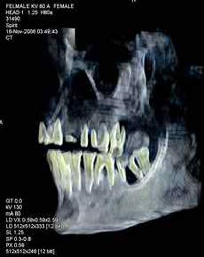 """Одно из исследований состояло в сканировании деревянного ящичка с именем Хатшепсут - в нем оказались человеческие печень и зуб. Зуб, как сообщил Хавасс, идеально подходит к лунке в челюстной кости """"толстой женщины"""" и совпадает со сломанным корнем. Кроме того, была изучена митохондриальная ДНК, наследуемая только по материнской линии. У предполагаемой Хатшепсут она указывает на родство с первой царицей XVIII династии Ахмосе-Нефертари."""