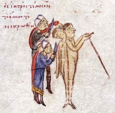 Византийские близнецыПаре безымянных сиамских близнецов в X-м веке удалось выжить в младенчестве, о чём свидетельствуют записи, оставленные несколькими историками того времени. Десять веков назад сиамских близнецов было мало, так как в древнем мире врождённые аномалии считались плохим предзнаменованием, и поэтому детям часто позволяли умереть.