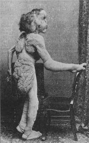 """Самый известный среди них - Человек-слон. Джозеф Меррик по праву считался самым несчастным человеком своего времени, поскольку страдал синдромом Протея, при котором происходит необычайный рост костей и кожи. Болезнь привела к тому, что, как писал один из врачей, """"женщины и слабонервные, завидя его, бежали в страхе прочь, и потому он не мог надеяться на то, чтобы вести нормальную жизнь, несмотря на свой высокий интеллект""""..."""