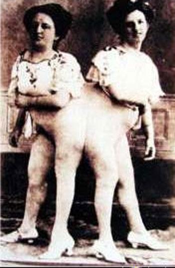"""В подобных труппах также было очень много так называемых """"уродов"""", то есть людей, просто демонстрирующих публике свои физические недостатки. Вот перед вами сиамские близнецы..."""