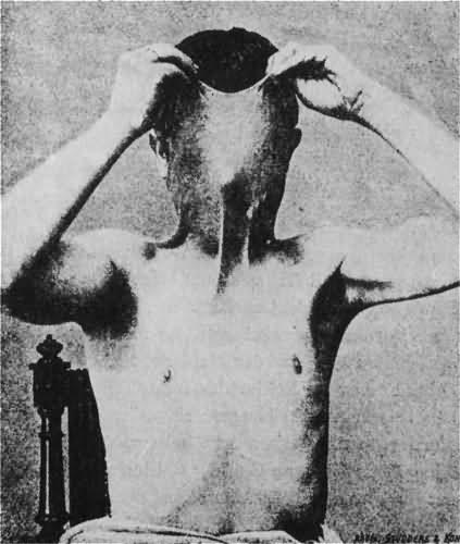 А этот человек демонстрирует кожный нарост вокруг шеи...