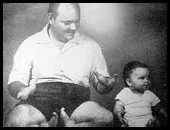 В этой семье дети из поколения в поколение рождались с клешнями вместо рук и ног...