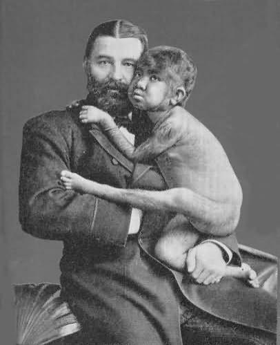 Мальчик-обезьяна на руках у благовидного отца вызывал жалость у мужчин и потоки слез у женщин...