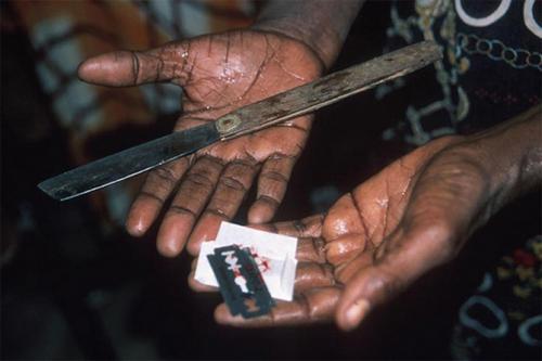В Мали все еще широко практикуется женское обрезание.