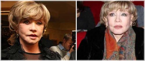 Судя по лицу артистки, не все они были спешными, после вмешательства в 2009 году мимика актрисы оказалась нарушена, лицо стало ассиметричным.