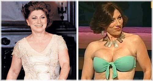 Сябитова делала эстетическую коррекцию лица, применяла инъекции ботокса и увеличивала грудь.