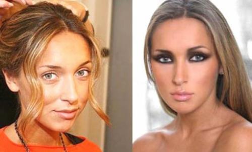 АлсуВ 21 год певица решила исправить горбинку на носу и сделала ринопластику.