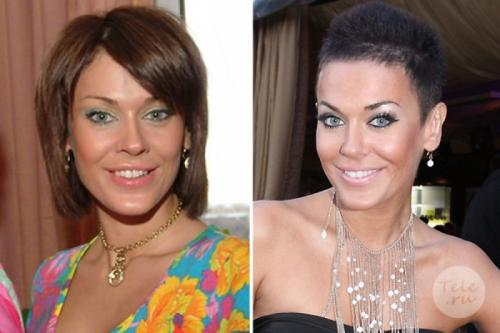 Татьяна Терешина Певица исправила форму носа.