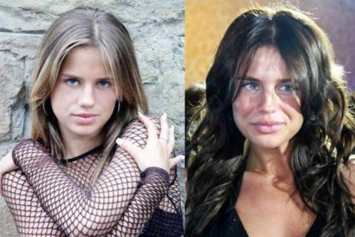 """АлексаЮная участница шоу """"Фабрика Звезд-4"""" решила в 23 года стать похожей на своего модного кумира, Анджелину Джоли, для чего уменьшила нос и увеличила губы."""