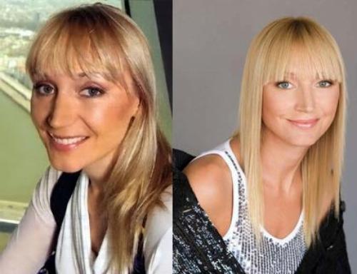 Кристина ОрбакайтеПевица от природы обладала совсем не идеальным носом, который и решилась исправить.
