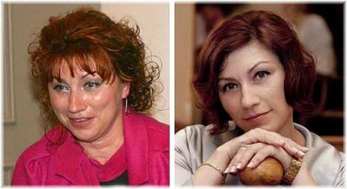 Роза СябитоваТелеведущая не скрывает, что любит прибегать к услугам пластических хирургов и современным косметическим технологиям.