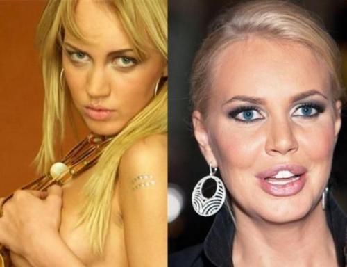 Маша МалиновскаяВпервые телеведущая увеличила губы десять лет назад и неоднократно повторяла процедуру. Однажды губы перестали смыкаться и потеряли чувствительность.