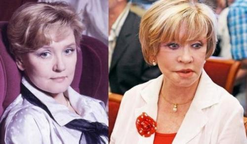 Вера АлентоваВпервые пластическую операцию, круговую подтяжку, актриса сделала еще в конце 90-х, за ней последовали еще несколько.