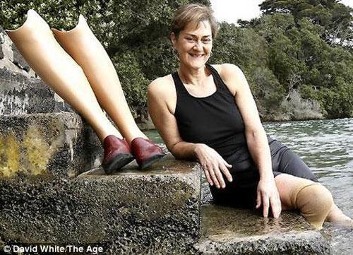 женщина без обеих ног познакомится