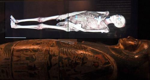 Старейший скелет гиганта Тело древнеегипетского фараона Са-Нахта считается самыми древними из известных останков гигантского человека. Его рост достигал 1,90 сантиметров - небывало для древних людей! По мнению ученых, изучивших скелет Са-Нахта, это был первый из известных на сегодня науке случаев истинного гигантизма на Земле.