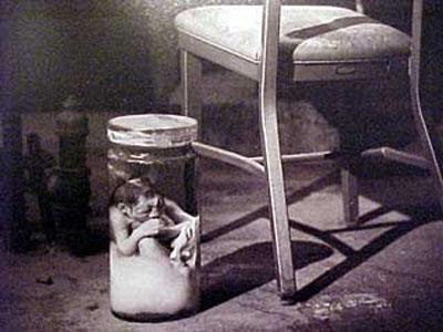 Фотография сиамских близнецов,сделанная после вскрытия тела...