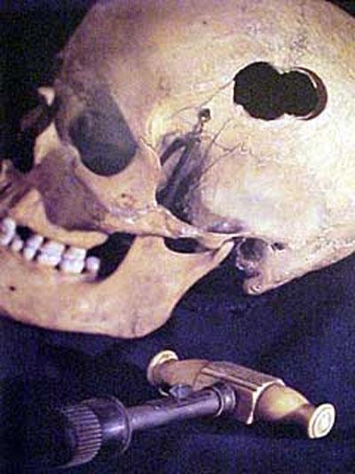Это инструмент для трепанации черепа. Именно такими инструментами в предыдущие века проделывали отверстие в кости черепа для удаления из полости сгустков крови из раны…