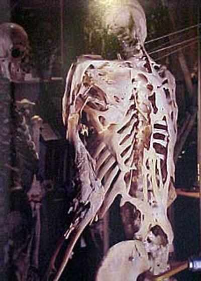 Перед тем, как умереть в возрасте сорока с лишним лет, Истлак передал в дар музею свой скелет...