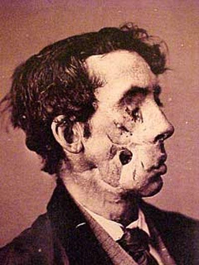 Умер по неизвестной.  Необычная опухоль на голове.