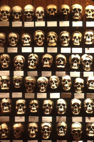 Больше всего этот музей  известен своей огромной коллекцией черепов.