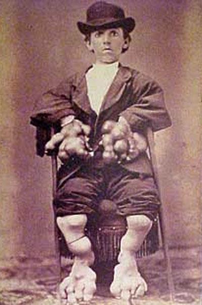 Один из главных экспонатов Музея Мюттера  - Гарии Истлак, человек, при жизни страдавший прогрессирующей оссифицирующей фибродисплазией (Fibrodysplasia Ossificans Progressiva, FOP) - заболеванием, при котором происходит формирование лишних костей на месте синяка или раны...