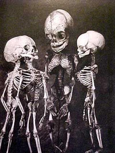 Среди них есть и уникальные экспонаты, как, например, человеческий кишечник длиной 12,5 см и труп женщины, который превратился в мыло в земле, в которой она была похоронена.