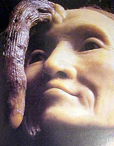 Это женщина - мадам Диманш. Она жила в Париже в начале девятнадцатого столетия. К 76 годам у неё на лбу вырос рог, и к 82 годам достиг длинны 20 см. Он был успешно удален  известным французским хирургом Джозефом Субербеиллом (Joseph Souberbeille,1754-1846)…