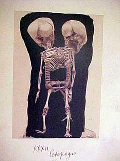 Скелет двухголового ребёнка...