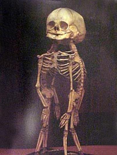 Скелет сиамских близнецов соединённых головами...