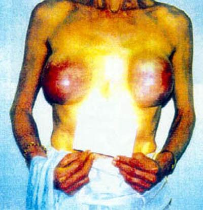 Операция увеличения груди проводится под общей или внутривенной анестезией, около 1-1,5