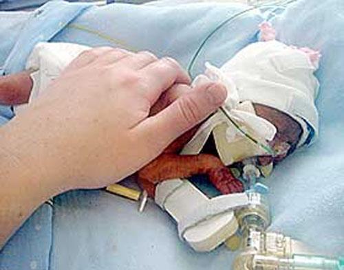 У него были такие тонкие кости, что врачи во время родов нечаянно сломали ему ребра и обе ноги...