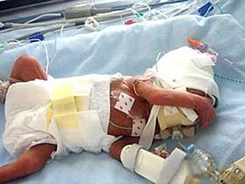 Иначе, как объяснить то, что, родившись на 23 неделе беременности своей матери Виктории, мальчик весом всего 450 граммов не только выжил, но и победил несколько страшнейших недугов....