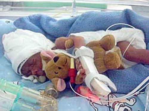 На пятый день у мальчика началась тяжелейшая желудочная инфекция, он перенес трехчасовую операцию и пятьдесят переливаний крови...Никто не думал, что он переживет всё это...Но он боролся...Вот так - в обнимку с плюшевым Винни-Пухом.