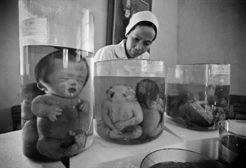 Самые странные новорожденные 78