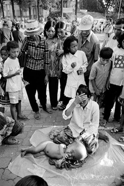До сих пор во Вьетнаме на свет появляются дети с разного рода врождёнными уродствами, физическими и умственными. Многие из них входят в группу повышенного риска онкологических заболеваний.