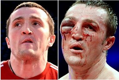 фото боксёров после боя