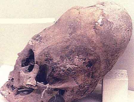 И действительно, черепа эти, найденный в Южной Америке, вполне отвечают нашим представлениям о строении тела пришельца...