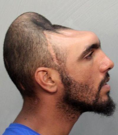 У мужчины по имени Карлос Родригес (Carlos Rodrigues), проживающего в Майями, США, и попавшего в автомобильную аварию, полностью отсутствуют лобные доли головного мозга и больше половины черепа.