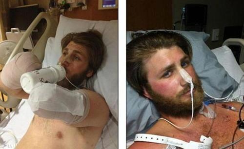 Моррис не потерял сознание, у него не было шока, он лежал в сознании, истекая кровью, и только кричал, чтобы медики не подходили к нему, ведь поблизости могут быть и другие мины. Когда специалисты-взрывотехники проверили местность, медики подошли к раненому. На вертолете его доставили в госпиталь в Кандагаре, а потом перевезли в Германию.