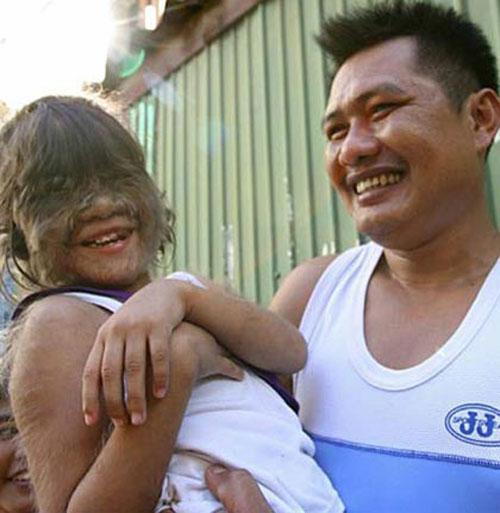 На фото - 33-летний Юй Чжэньхуан (Китай). самый волосатый человек в