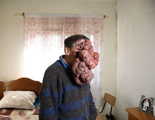 Аномальные опухоли лица и тела.