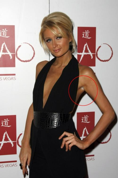 Пэрис Хилтон, одевая открытое платье, забыла обработать автозагаром подмышки.