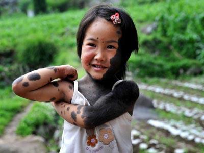 в китае родители отказались от ребенка оборотня 8 фото