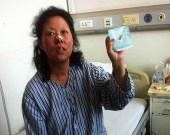 Китаянка 40 лет прожила с пулей в голове