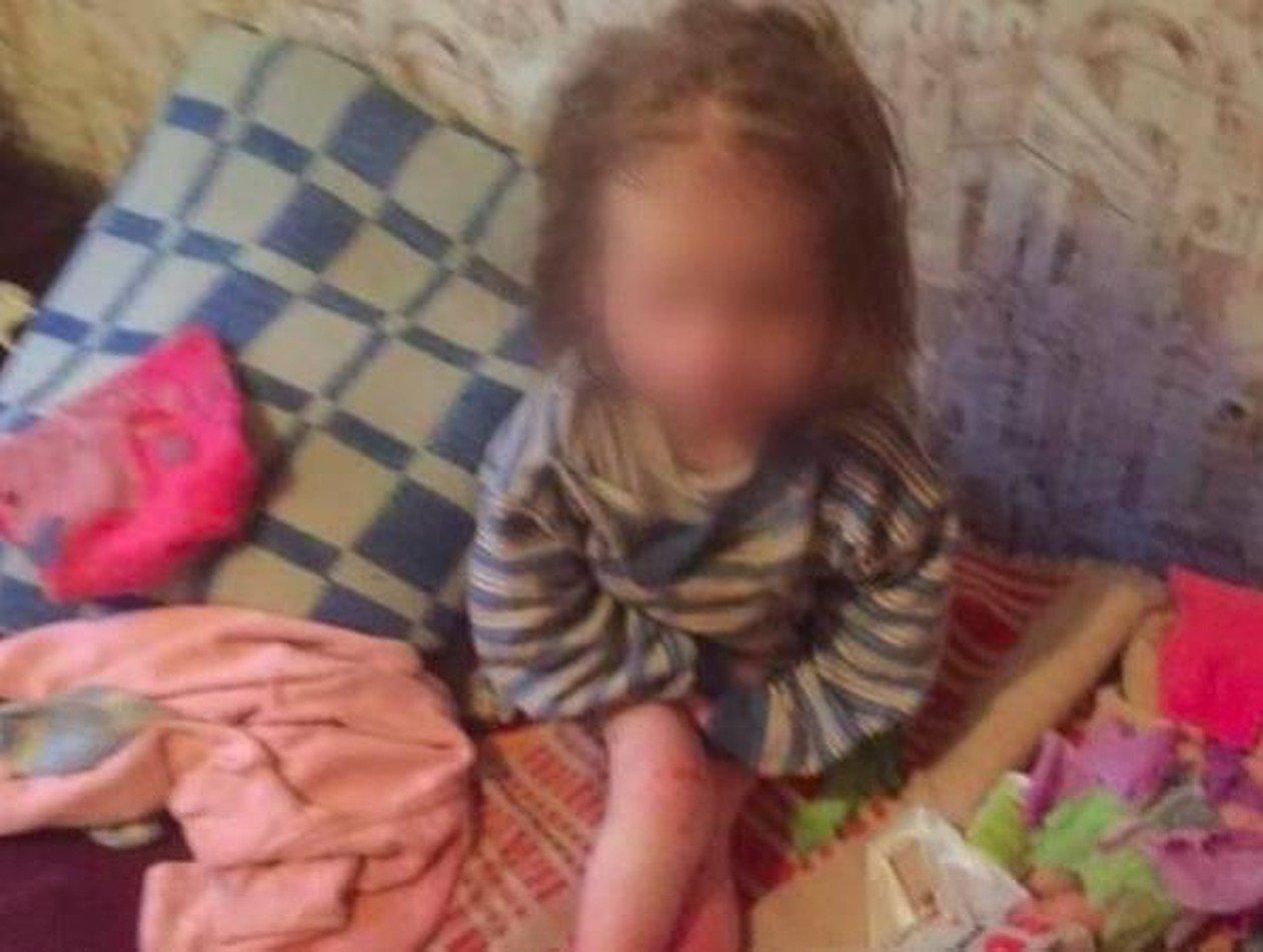 Истощенную малышку под Брянском спас собутыльник ее отца